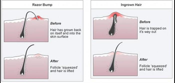 إحذر هي الأخطاء لتجنب نمو الشعر تحت الجلد