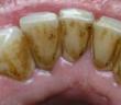 تخلص من الرواسب على اسنانك في دقيقه
