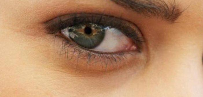 تعرف على 4 طرق لعلاج الهالة السوداء حول العينين