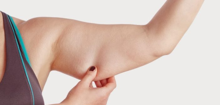 تعرف كيف تتجنب ترهل الجلد بعد فقدان الوزن الزائد sagging skin