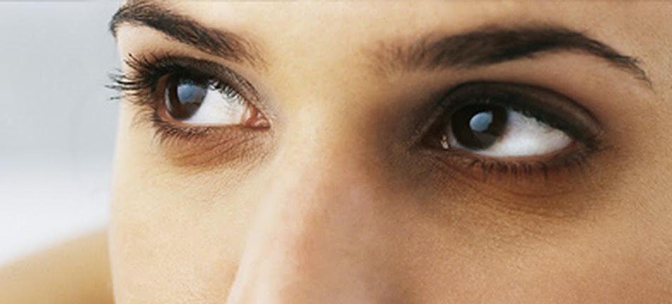 سبب ظهور هالة سوداء وانتفاخ تحت العين