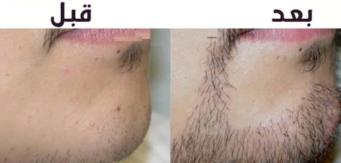 طرق زيادة شعر اللحية عند الرجال