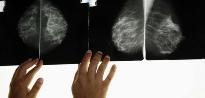 علماء يكتشفون السبب الرئيس لمرض السرطان