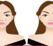 كيف تحمين بشرتك من البقع الداكنة؟