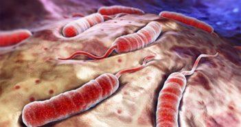 ما هو مرض الكوليرا وما هي أعراضه ؟