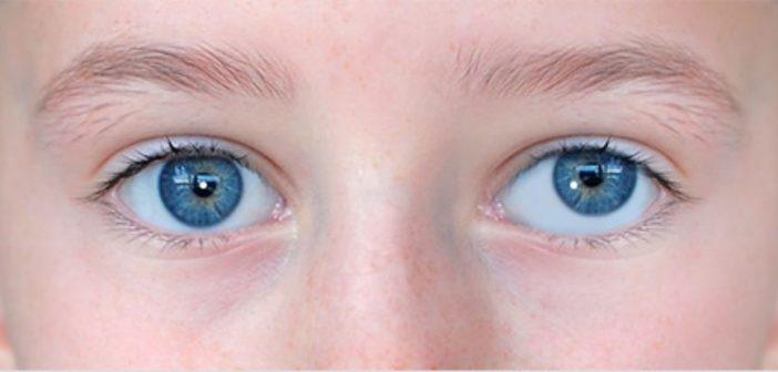 ما هي أسباب انحراف العين؟ وماهي طرق علاجها؟
