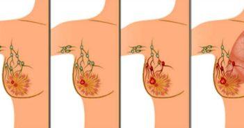 ما هي العلاقة بين سرطان الثدي وحمالات الصدر؟ breast cancer