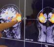 دراسة: هذا ماقد يسببه لك إصابات الدماغ الخفيفة!