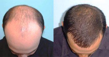 هذا ما يحدث للأصلع بعد عملية زرع الشعر - Hair transplant