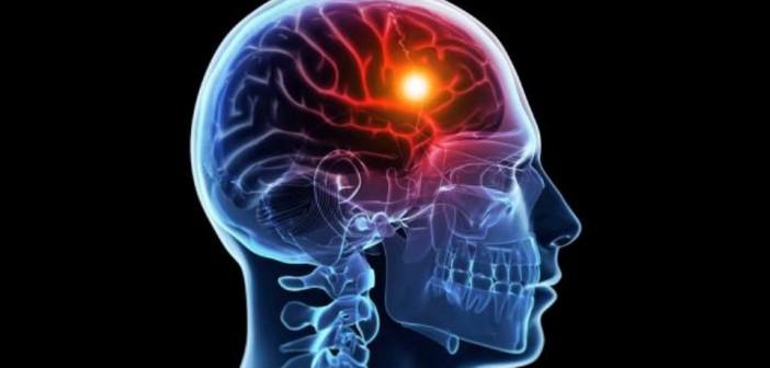 هذه هي علاقة اللحوم الحمراء بالسكتة الدماغية