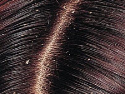 السيطرة على تساقط الشعر ومنعة من التساقط بسهولة